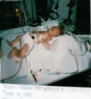 RSV sick baby